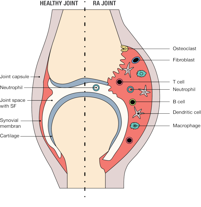 Figure 2 A schematic representation of a joint. A healthy joint to the left, with a thin synovial membrane, and an inflamed RA joint to the right, with a hypertrophied synovial membrane with massive influx of inflammatory cells.