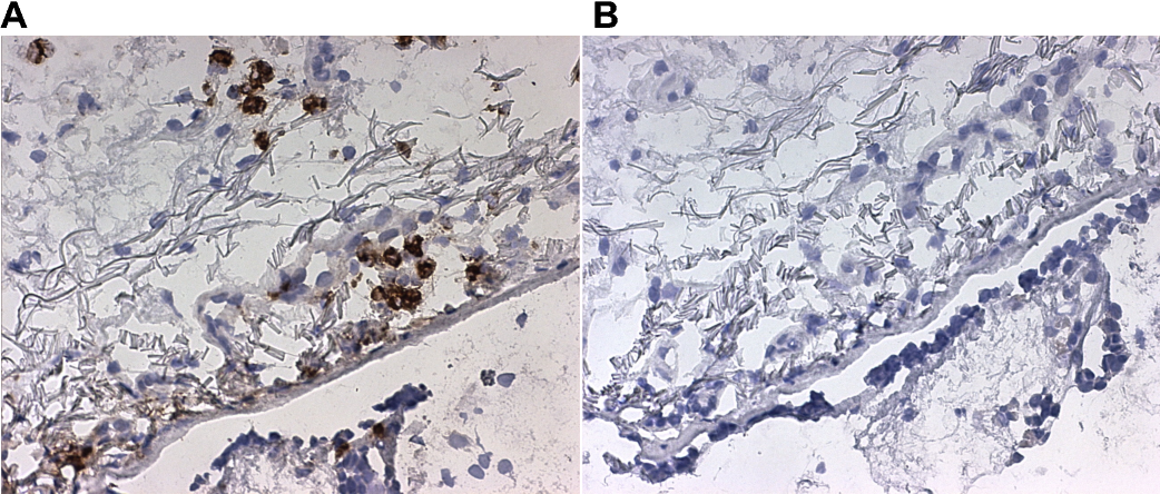 Figure 6 Immunohistochemical analysis of LL-37 expression in lungtissue from a patient with RA. LL-37 expression in cells with neutrophil morphology (A), negative control (B). Magnification x25