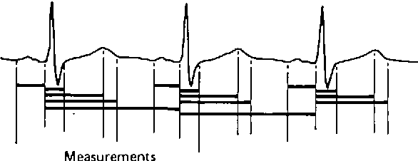 Figure 1 from measurement of the qt interval semantic scholar figure 1 diagram representing the 15 points digitized for each ecg lead these points provided ccuart Images