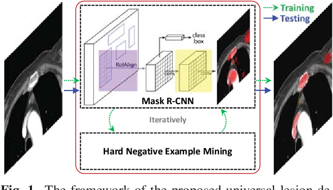 Figure 1 for ULDor: A Universal Lesion Detector for CT Scans with Pseudo Masks and Hard Negative Example Mining