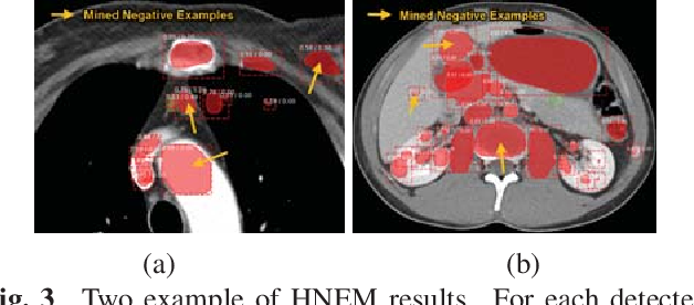 Figure 4 for ULDor: A Universal Lesion Detector for CT Scans with Pseudo Masks and Hard Negative Example Mining