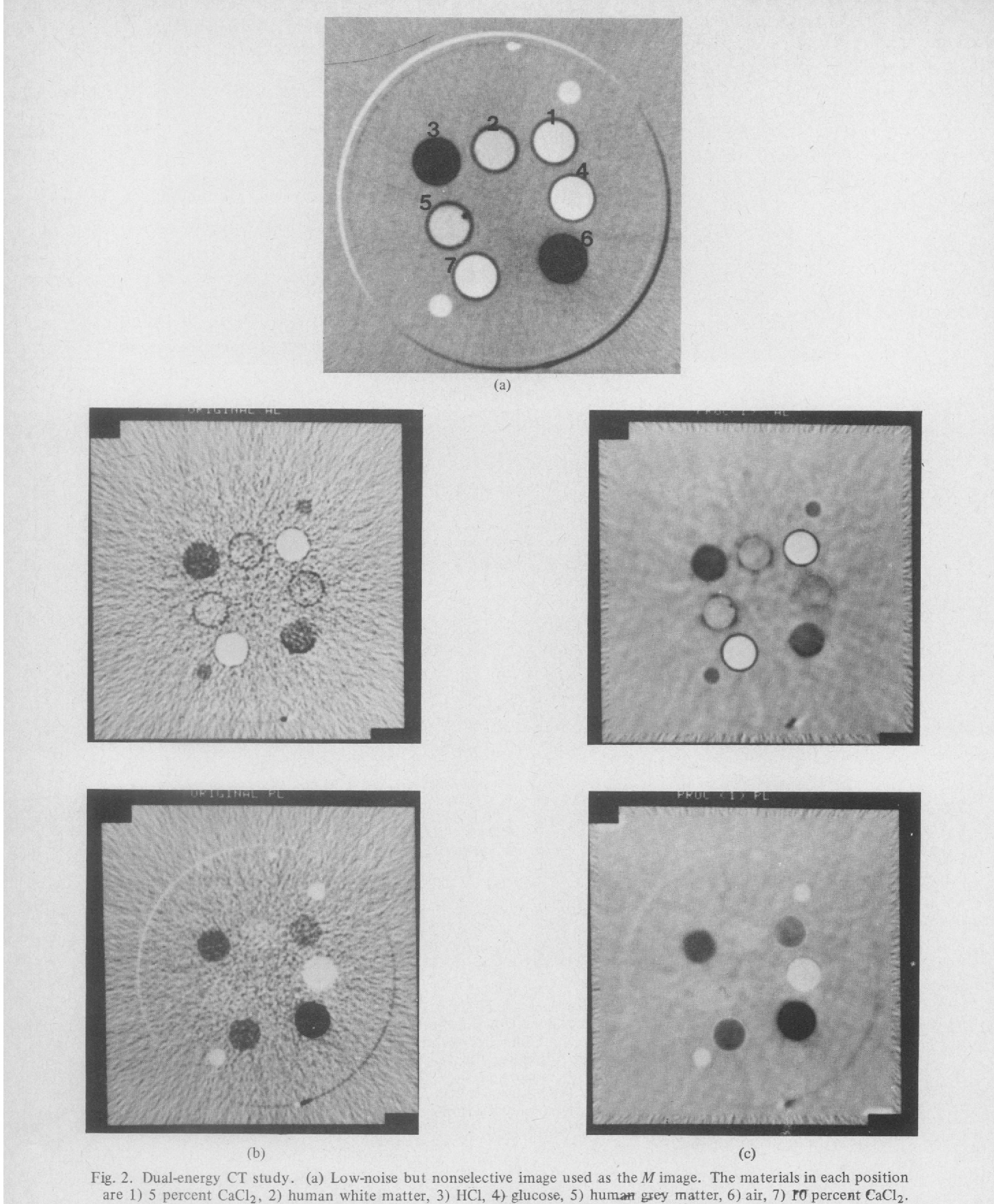 Fig. 2. Dual-energy CT study. (a) Low-noise but nonselective image used as theM image. The materials in each position are 1) 5 percent CaCI2, 2) human white matter, 3) HCI, 44 glucose, 5) human grey matter, 6) air, 7) mfJ percent CaCl2. (b) Aluminum (top) and plastic (bottom) component images from decomposition of the low and high energy scans. (c) Noise-reduced versions of Fig. 2(b). The improvement in SNR is about a factor of 4.