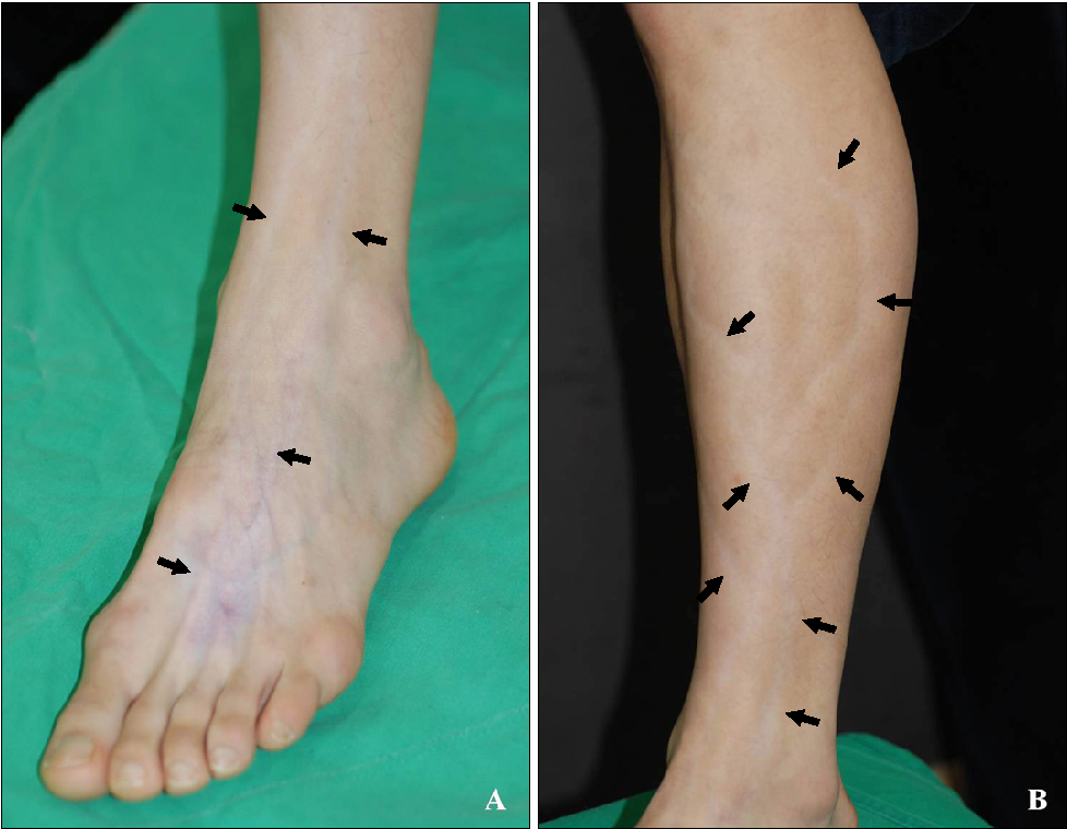 PDF] Branch-shaped Cutaneous Hypopigmentation and Atrophy after