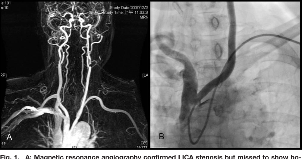 Transradial carotid stenting in a patient with bovine arch anatomy ...