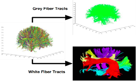 Figure 1 for Siamese LSTM based Fiber Structural Similarity Network (FS2Net) for Rotation Invariant Brain Tractography Segmentation