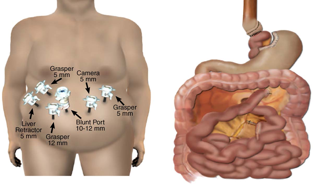 Outcomes of Roux-en-Y gastric bypass stratified by a body mass index ...