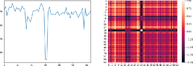 Figure 3 for NVAE-GAN Based Approach for Unsupervised Time Series Anomaly Detection