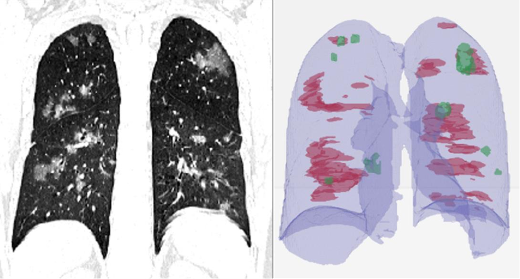 Figure 3 for Rapid AI Development Cycle for the Coronavirus (COVID-19) Pandemic: Initial Results for Automated Detection & Patient Monitoring using Deep Learning CT Image Analysis