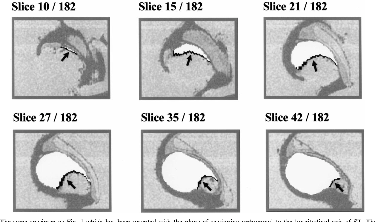Quantitative anatomy of the round window and cochlear aqueduct in ...