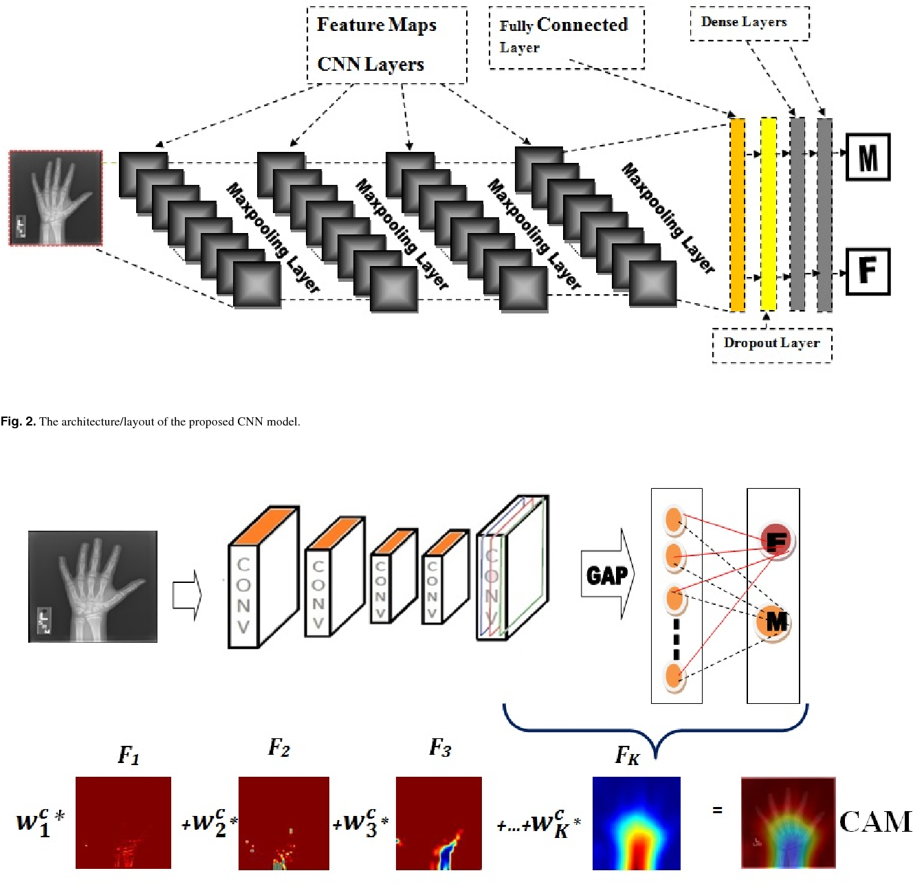 Figure 3 for Child Gender Determination with Convolutional Neural Networks on Hand Radio-Graphs