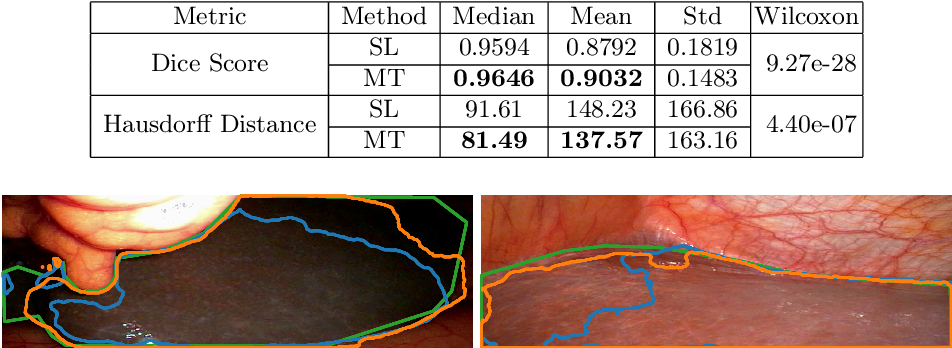 Figure 2 for More unlabelled data or label more data? A study on semi-supervised laparoscopic image segmentation