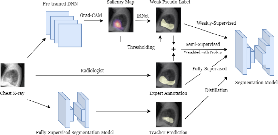 Figure 1 for CheXseg: Combining Expert Annotations with DNN-generated Saliency Maps for X-ray Segmentation