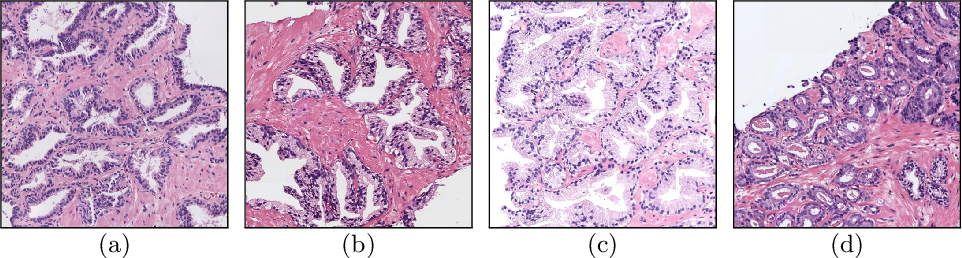 Figure 1 for Prostate Gland Segmentation in Histology Images via Residual and Multi-Resolution U-Net