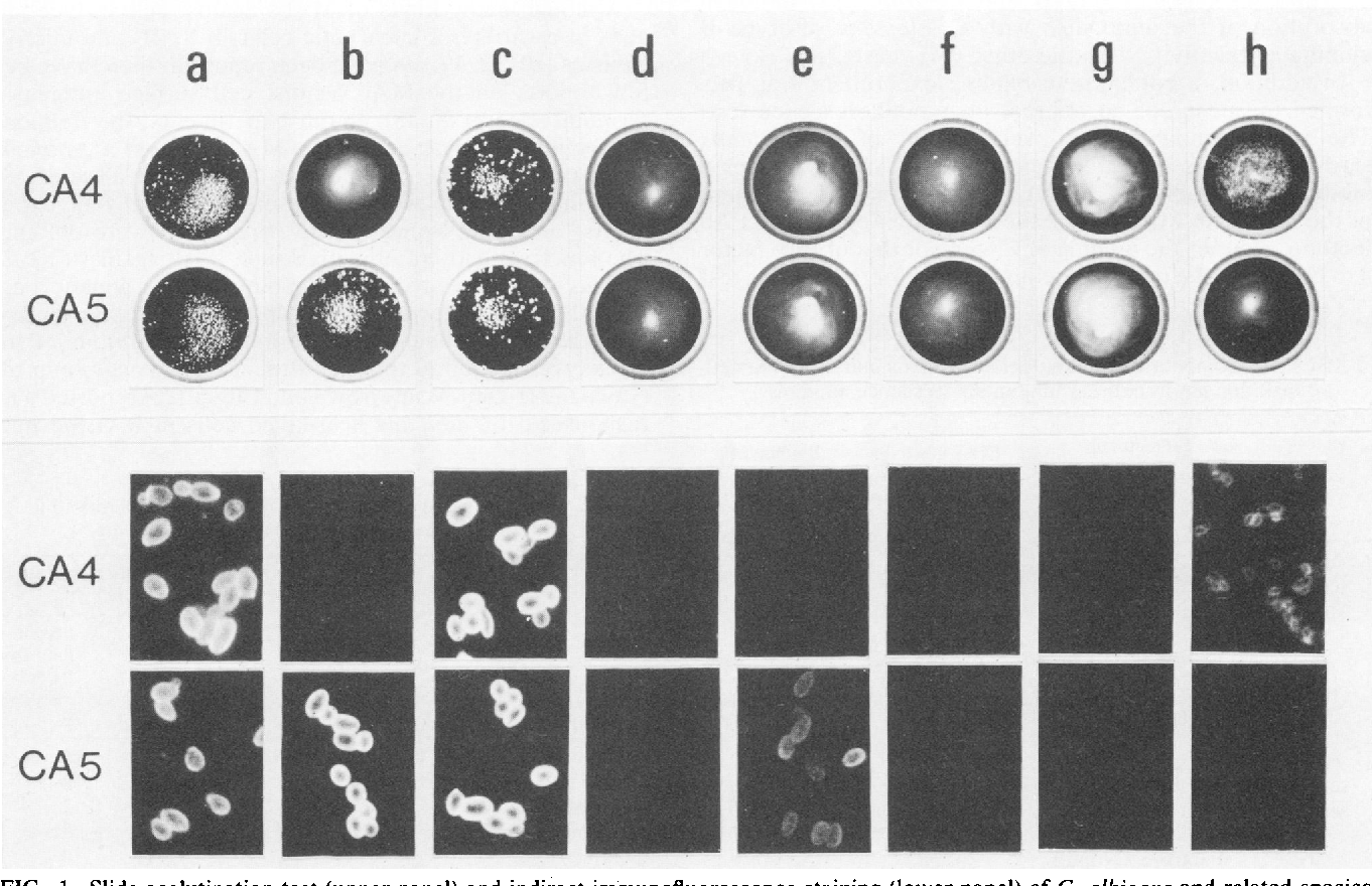 FIG. 1. Slide agglutination test (upper panel) and indirect immunofluorescence staining (lower panel) of C. albicans and related species with MAbs CA4-2 and CA5-4. A 20-fold dilution of each ascites fluid (original titer, 1:1,280) was used for the tests. (a) C. albicans M1012; (b) C. albicans M1445; (c) C. tropicalis M1017; (d) C. guilliermondii M1023; (e) C. krusei M1005; (f) C. parapsilosis M1015; (g) C. pseudotropicalis M1004; (h) T. glabrata M4002. CA4 and CA5 represent CA4-2 and CA5-4, respectively.