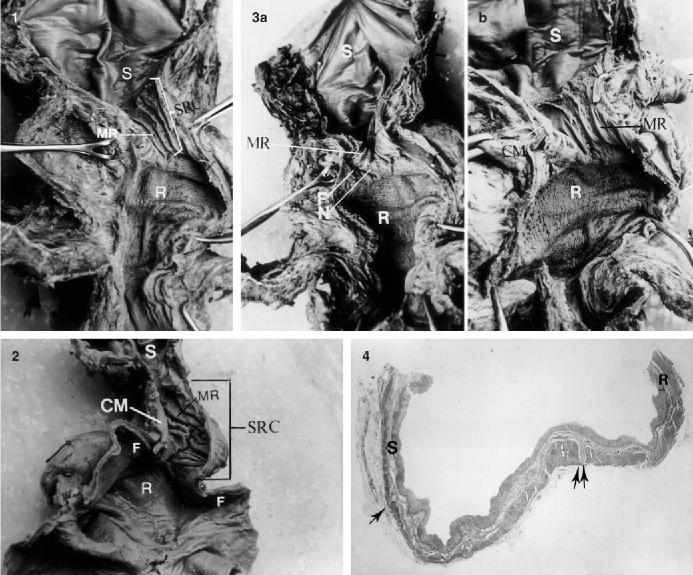 Rectosigmoid junction: anatomical, histological, and radiological ...