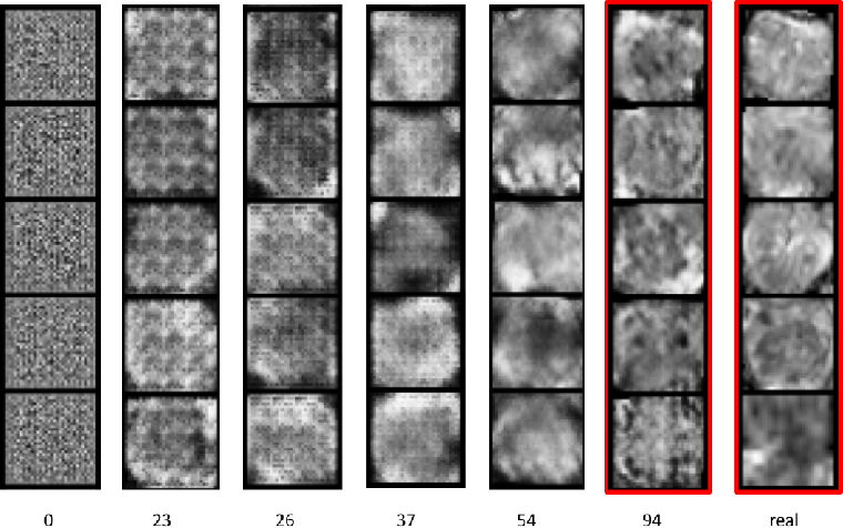 Figure 2 for ProstateGAN: Mitigating Data Bias via Prostate Diffusion Imaging Synthesis with Generative Adversarial Networks