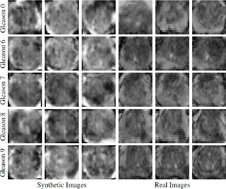 Figure 3 for ProstateGAN: Mitigating Data Bias via Prostate Diffusion Imaging Synthesis with Generative Adversarial Networks