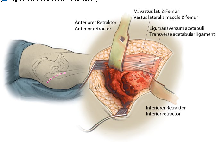 The Exeter method—acetabular impaction grafting with cemented ...
