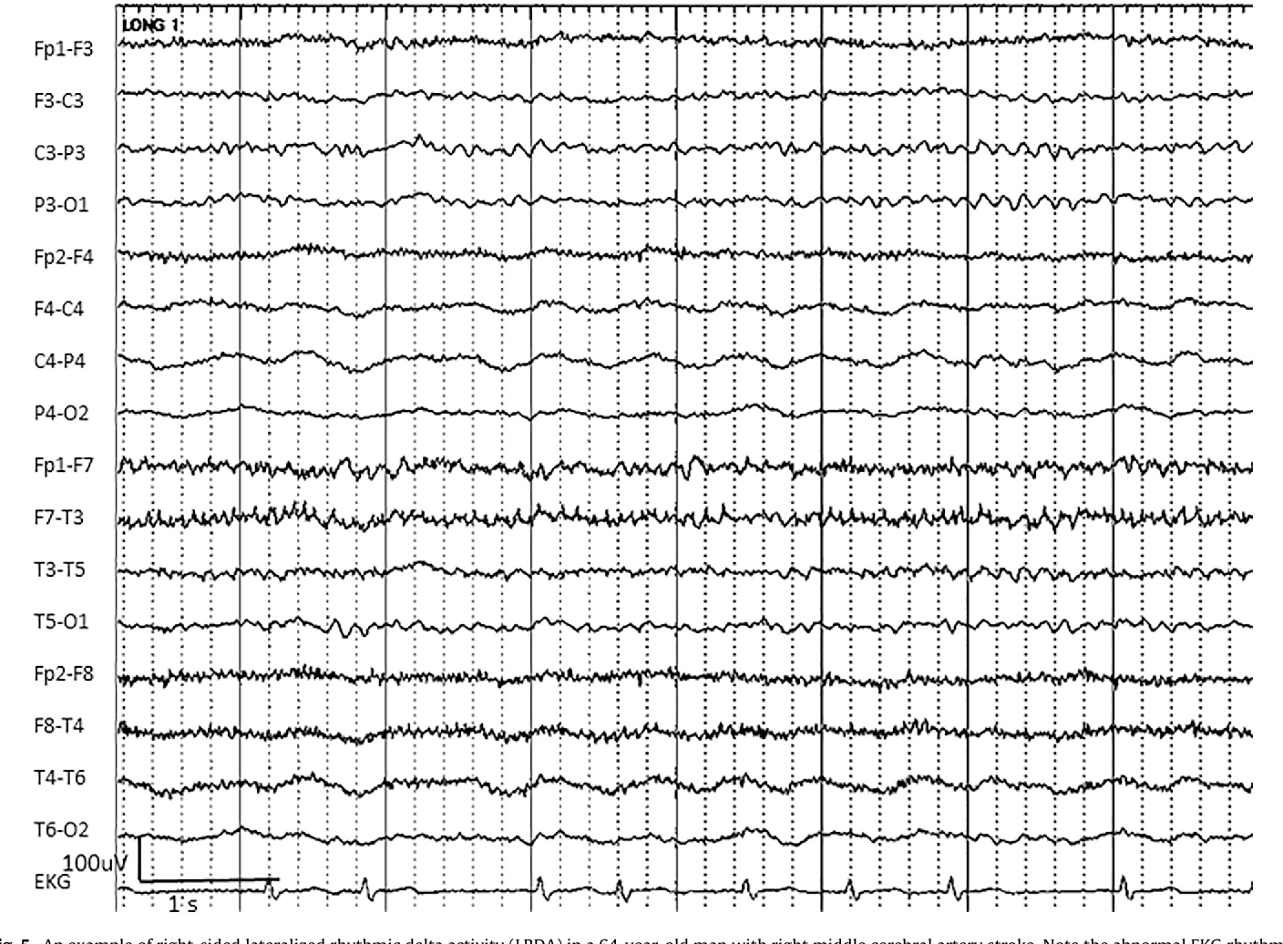 Figure 5 from Population of the ictal-interictal zone: The