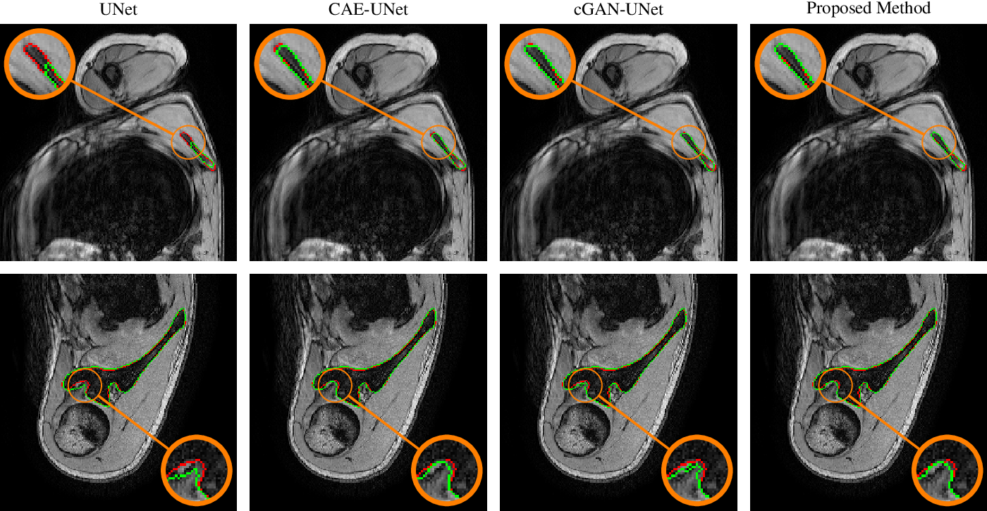 Figure 4 for Combining Shape Priors with Conditional Adversarial Networks for Improved Scapula Segmentation in MR images