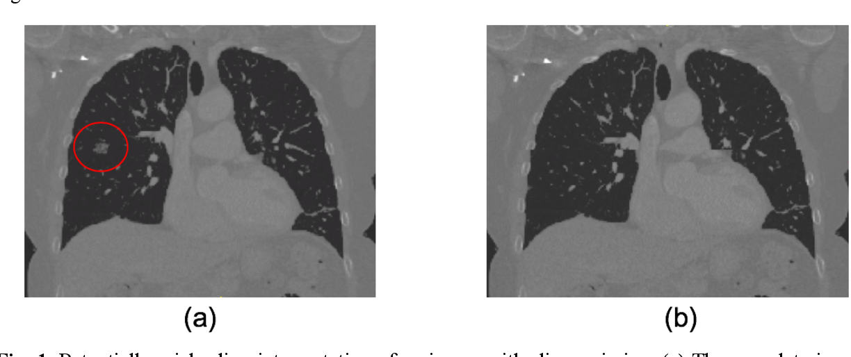 Figure 1 for Technical Report: Quality Assessment Tool for Machine Learning with Clinical CT