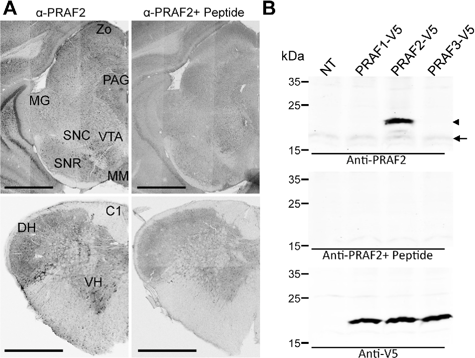 Anatomical and ultrastructural study of PRAF2 expression in the ...