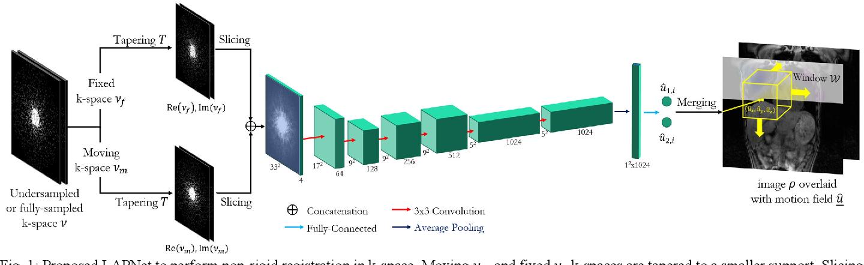 Figure 1 for LAPNet: Non-rigid Registration derived in k-space for Magnetic Resonance Imaging