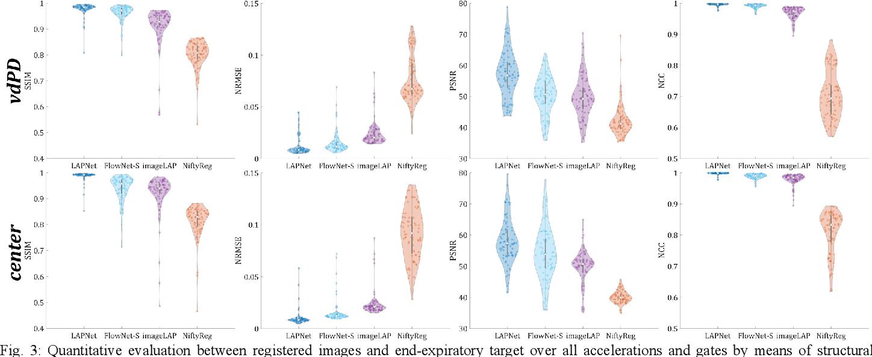 Figure 3 for LAPNet: Non-rigid Registration derived in k-space for Magnetic Resonance Imaging