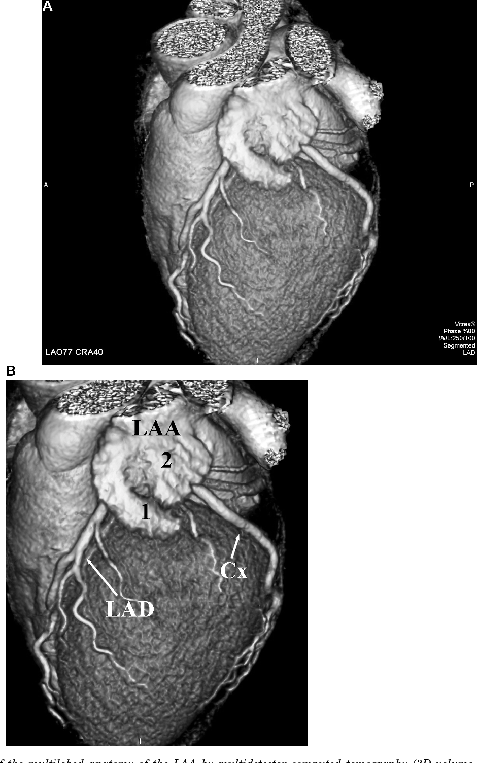 Figure 2 From Anatomy Of The Left Atrial Appendage Semantic Scholar