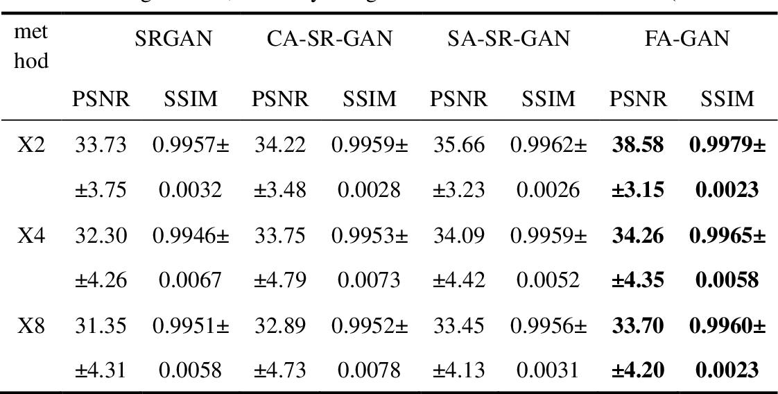 Figure 2 for FA-GAN: Fused Attentive Generative Adversarial Networks for MRI Image Super-Resolution