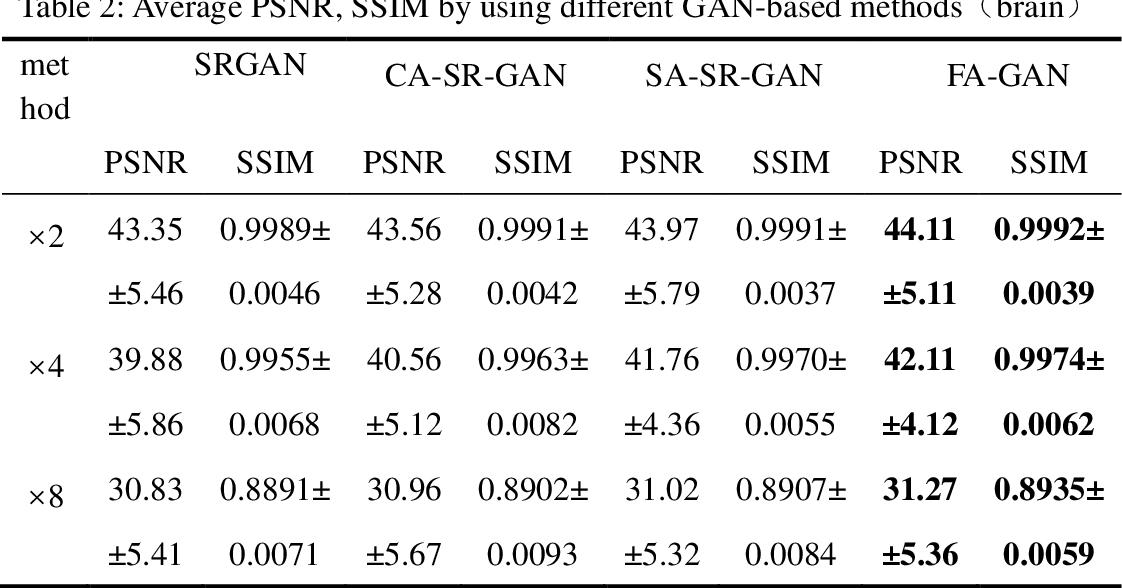 Figure 4 for FA-GAN: Fused Attentive Generative Adversarial Networks for MRI Image Super-Resolution