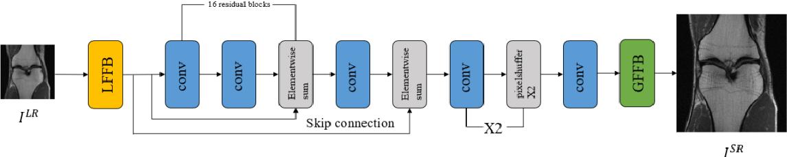 Figure 1 for FA-GAN: Fused Attentive Generative Adversarial Networks for MRI Image Super-Resolution