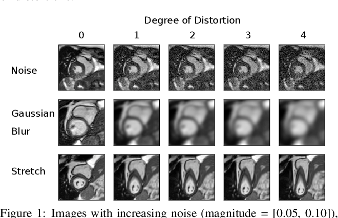 Figure 1 for Estimating Uncertainty in Neural Networks for Cardiac MRI Segmentation: A Benchmark Study