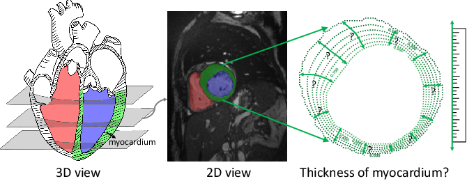 Figure 1 for Measure Anatomical Thickness from Cardiac MRI with Deep Neural Networks