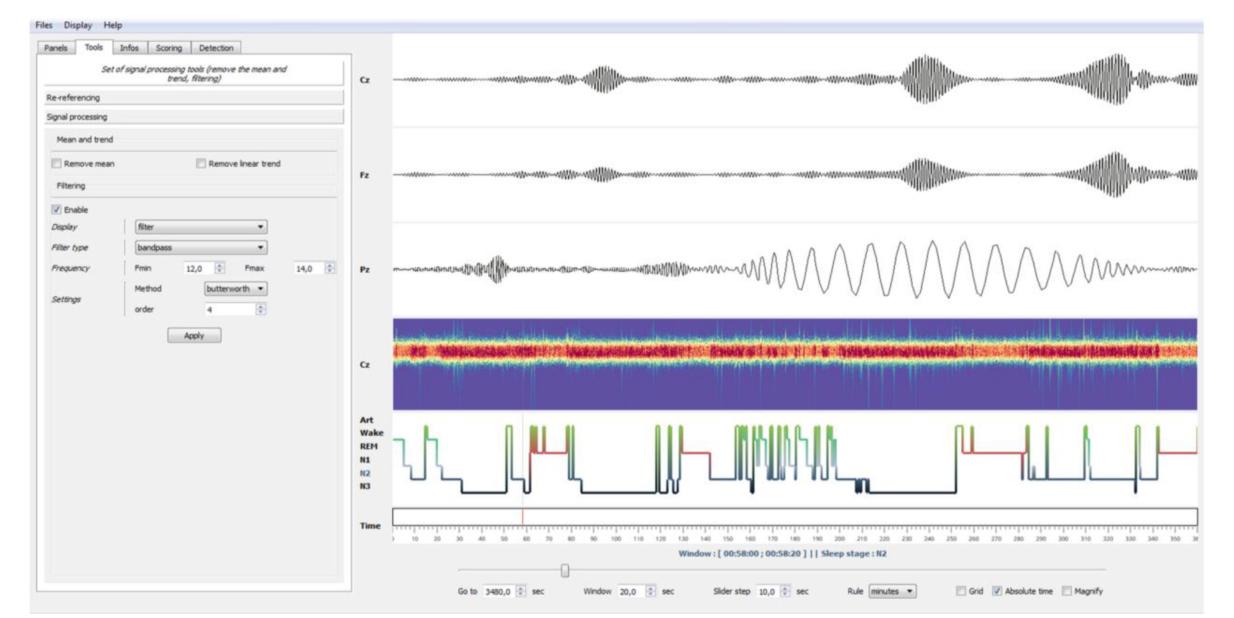 Python Spectrogram Implementation