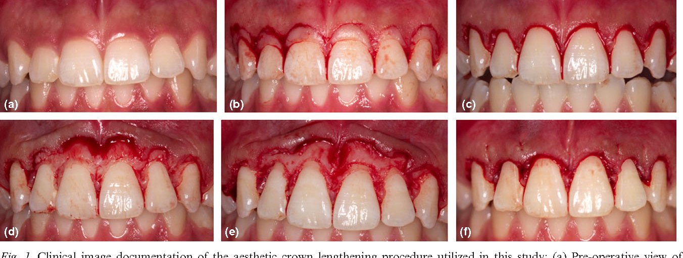 Aesthetic crown lengthening: periodontal and patient-centred outcomes. - Semantic Scholar