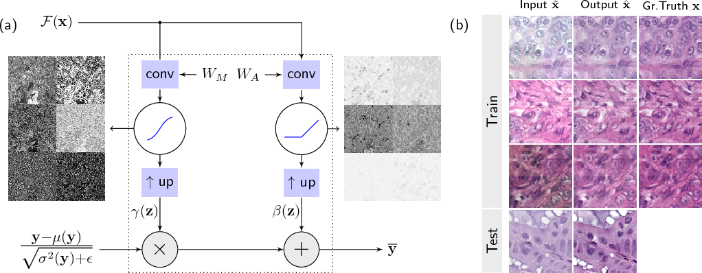 Figure 2 for Context-based Normalization of Histological Stains using Deep Convolutional Features