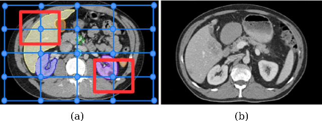 Figure 1 for Weakly-Supervised Learning of Metric Aggregations for Deformable Image Registration