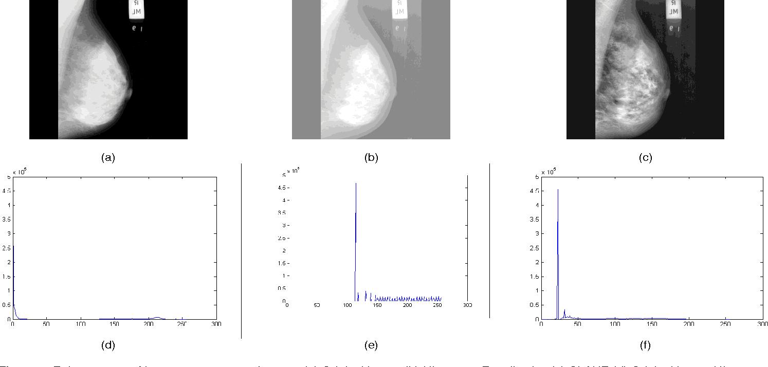 Enhancement of breast mammogram images. (a) Original Image (b