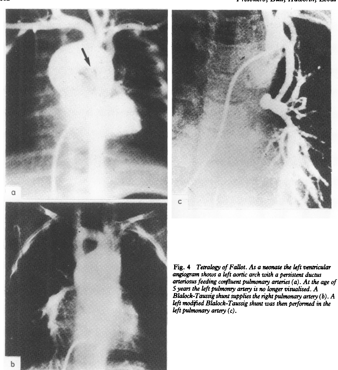 Figure 4 From Absent Or Occult Pulmonary Artery Semantic Scholar