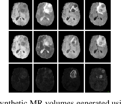 Figure 3 for RS-Net: Regression-Segmentation 3D CNN for Synthesis of Full Resolution Missing Brain MRI in the Presence of Tumours