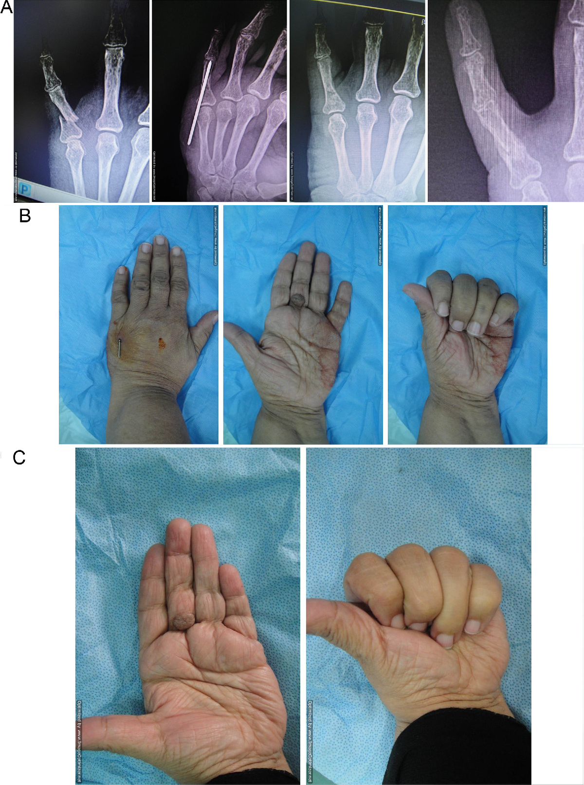 """Closed reduction and percutaneous """"periarticular"""" single K-wire ..."""