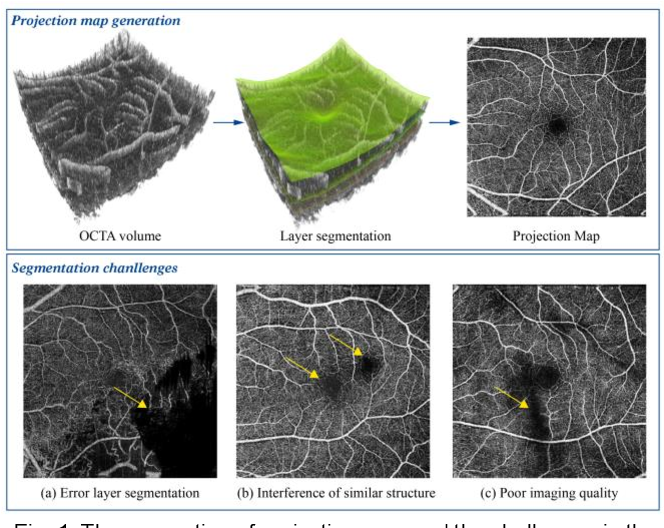 Figure 1 for IPN-V2 and OCTA-500: Methodology and Dataset for Retinal Image Segmentation