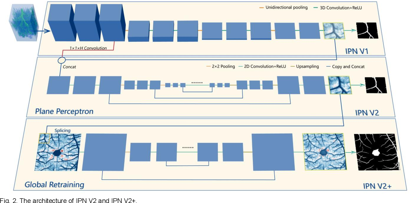 Figure 3 for IPN-V2 and OCTA-500: Methodology and Dataset for Retinal Image Segmentation