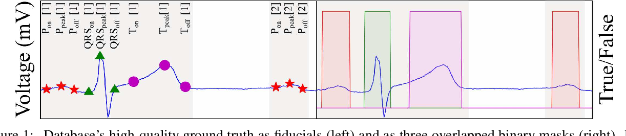 Figure 1 for ECG-DelNet: Delineation of Ambulatory Electrocardiograms with Mixed Quality Labeling Using Neural Networks