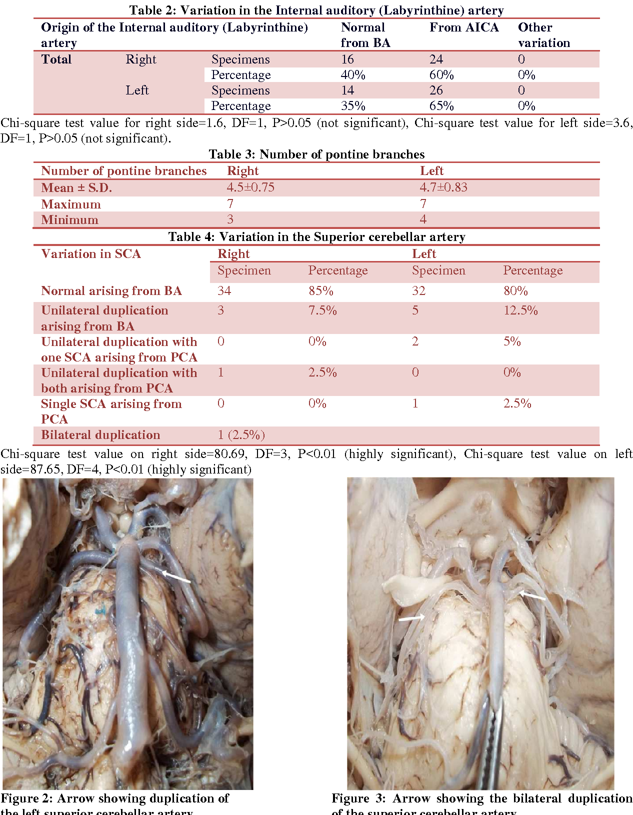 Variations in the branches of basilar artery in adult human cadavers ...