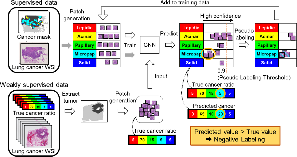 Figure 1 for Negative Pseudo Labeling using Class Proportion for Semantic Segmentation in Pathology