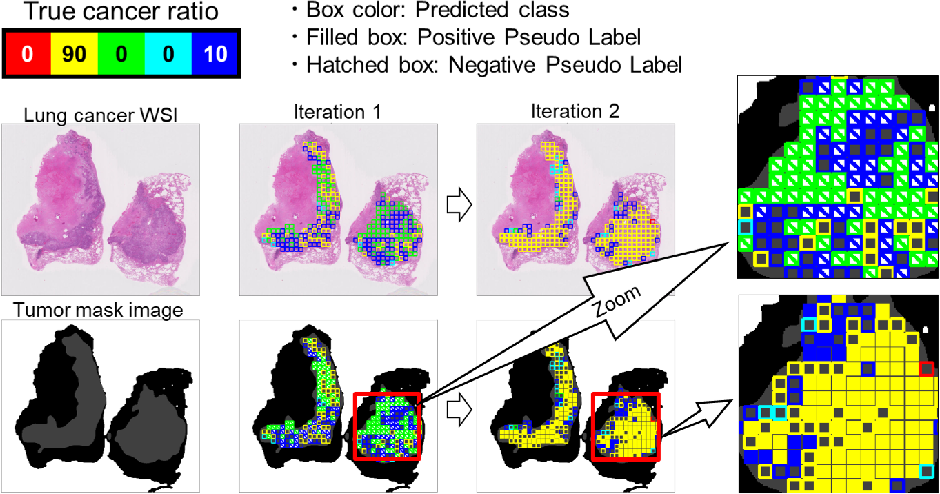 Figure 3 for Negative Pseudo Labeling using Class Proportion for Semantic Segmentation in Pathology