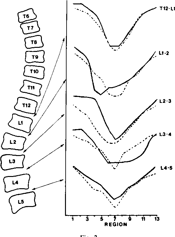 The Collagen Of The Intervertebral Disc In Adolescent Idiopathic
