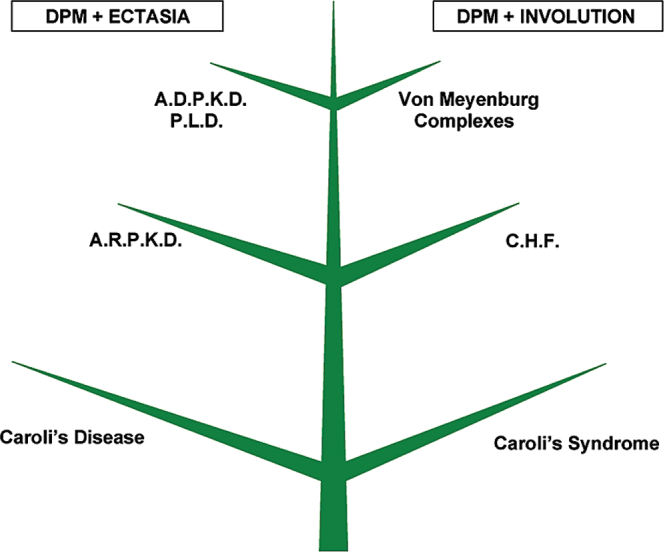 Figure 9 from the amazing universe of hepatic microstructure schematic representation of the intrahepatic biliary tree and the different congenital fibrocystic ccuart Choice Image